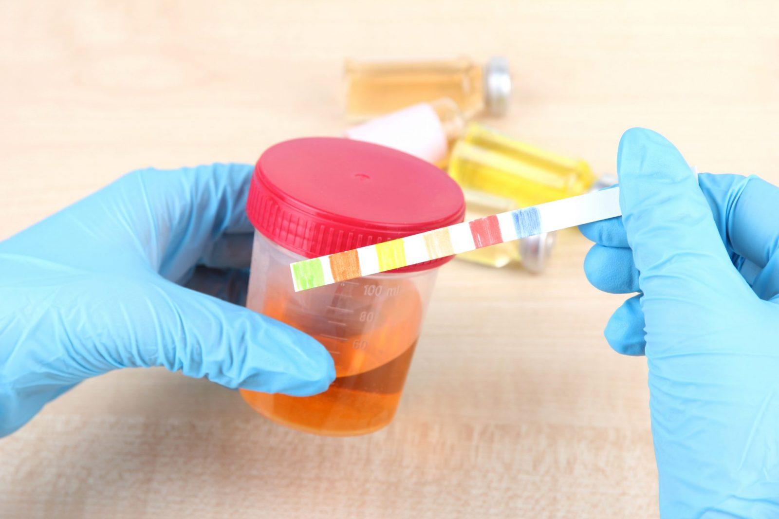 Białkomocz – przyczyny i leczenie