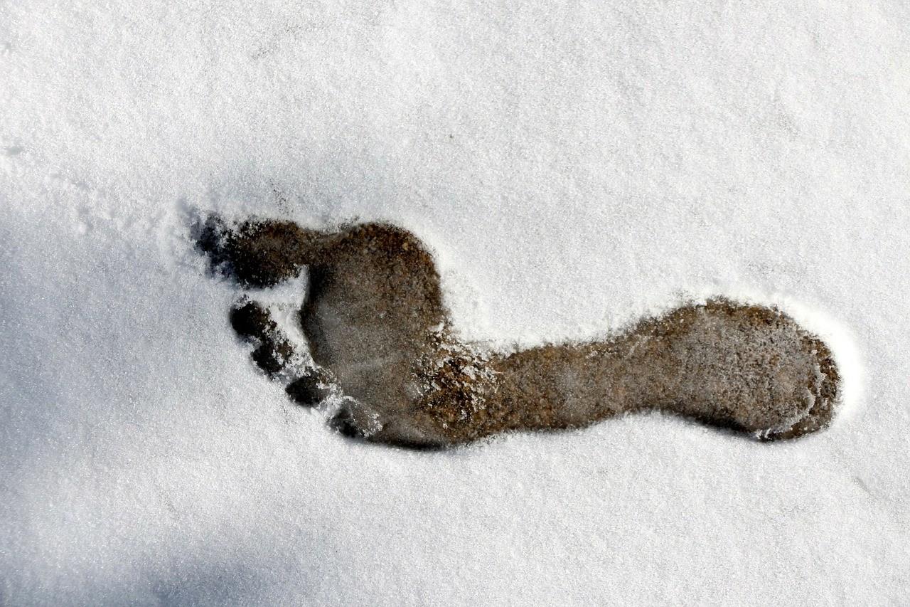 Jak dbać ostopy zimą?