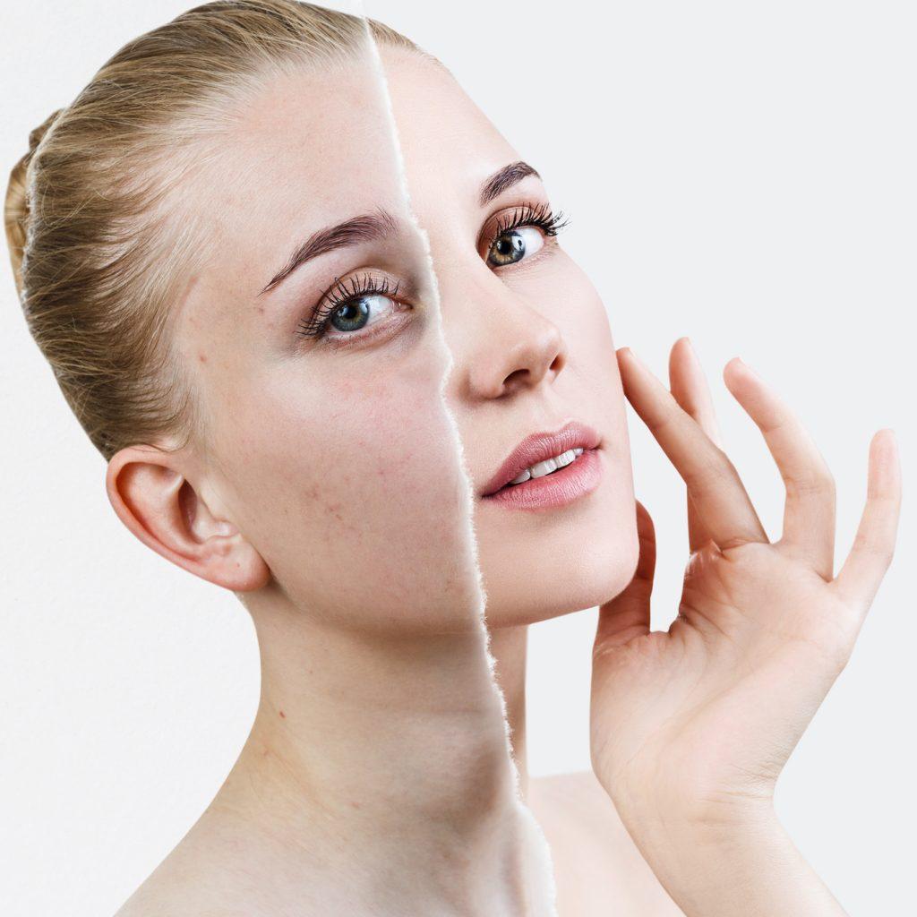 Zwalczaj niedoskonałości skóry z Garnier Czysta Skóra